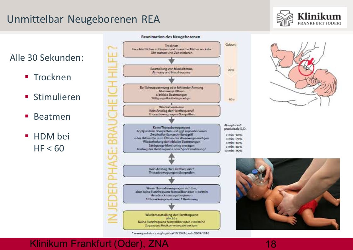 Unmittelbar Neugeborenen REA