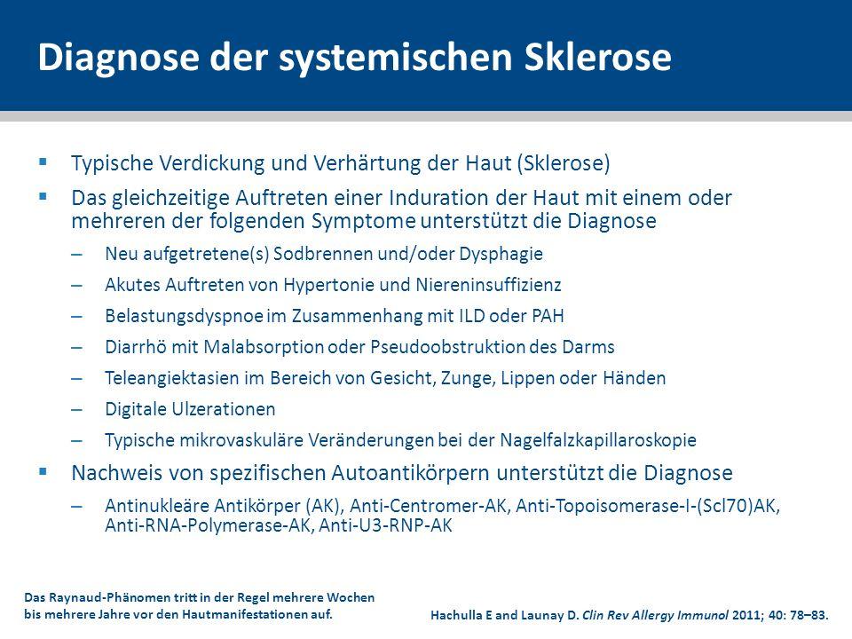 Diagnose der systemischen Sklerose