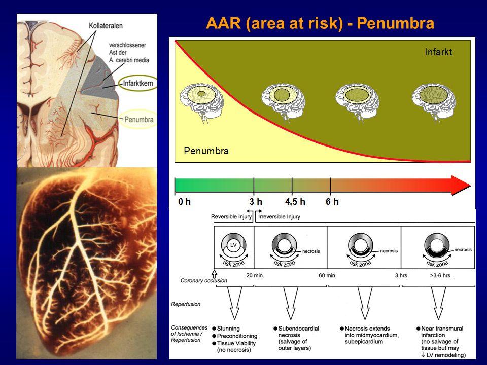 AAR (area at risk) - Penumbra