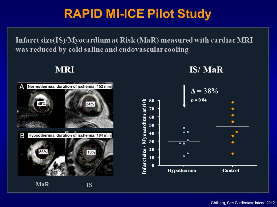 RAPID MI-ICE Pilot Study