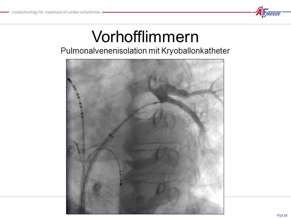 Pulmonalvenenisolation mit Kryoballonkatheter