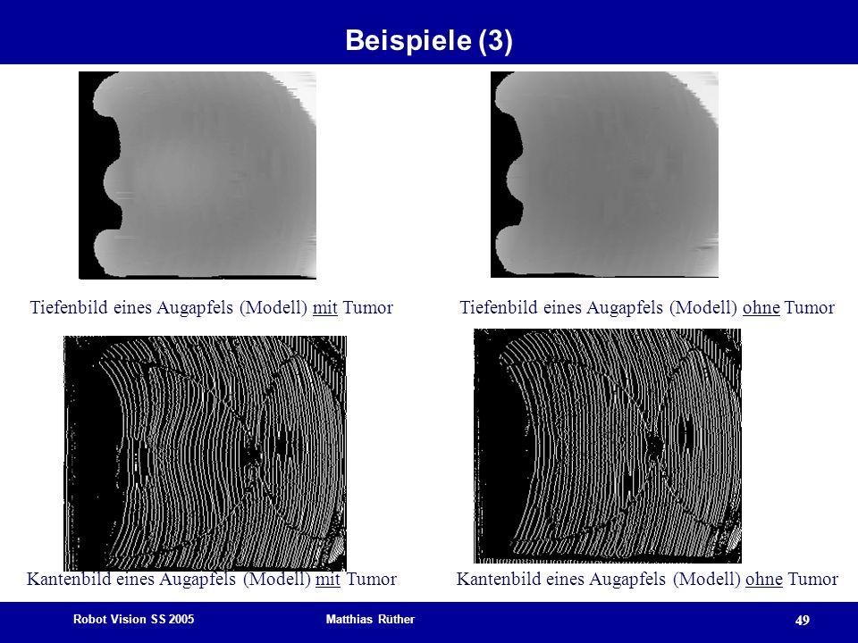 Beispiele (3) Tiefenbild eines Augapfels (Modell) mit Tumor