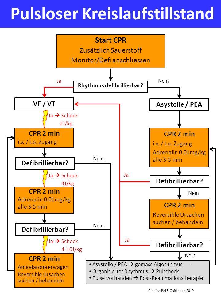 Pulsloser Kreislaufstillstand