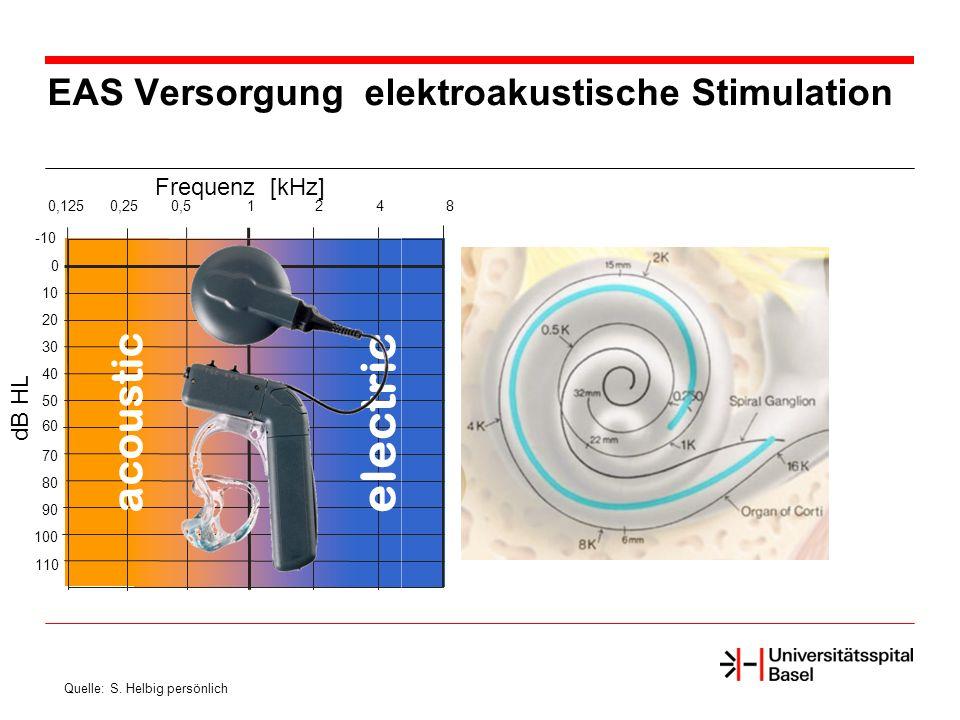 EAS Versorgung elektroakustische Stimulation