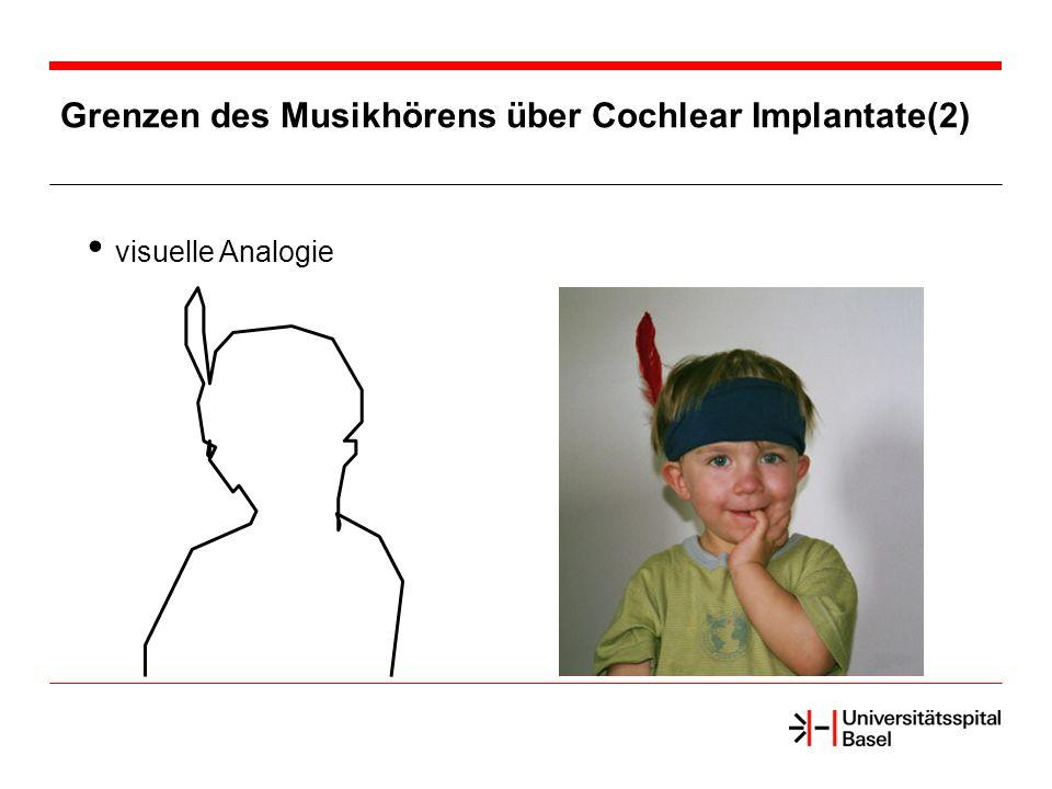 Grenzen des Musikhörens über Cochlear Implantate(2)