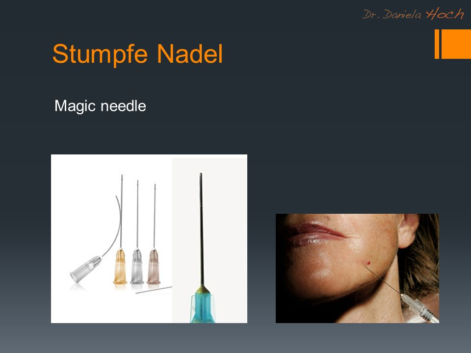 Stumpfe Nadel Magic needle