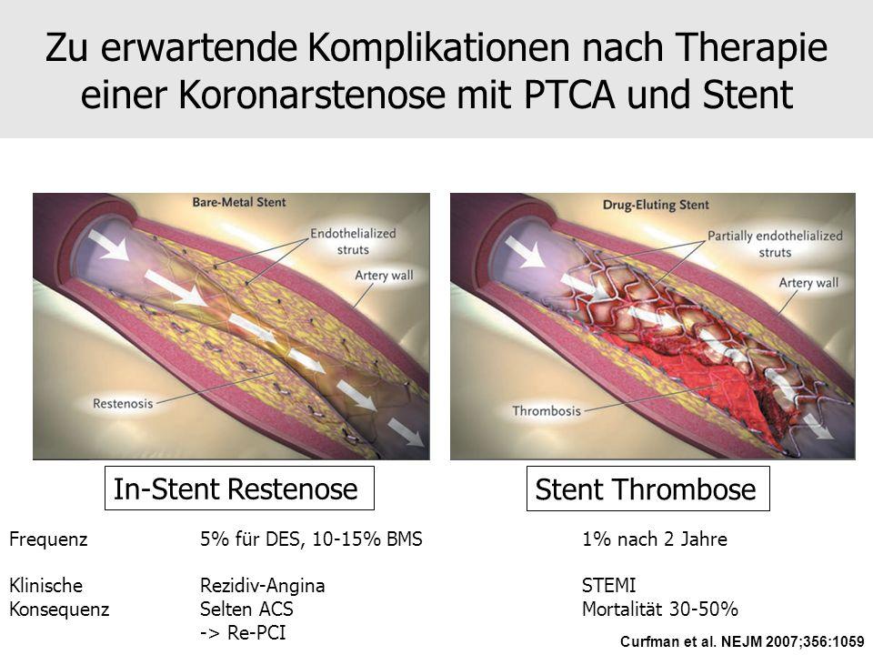 Zu erwartende Komplikationen nach Therapie einer Koronarstenose mit PTCA und Stent