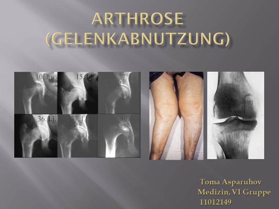 Arthrose (Gelenkabnutzung)