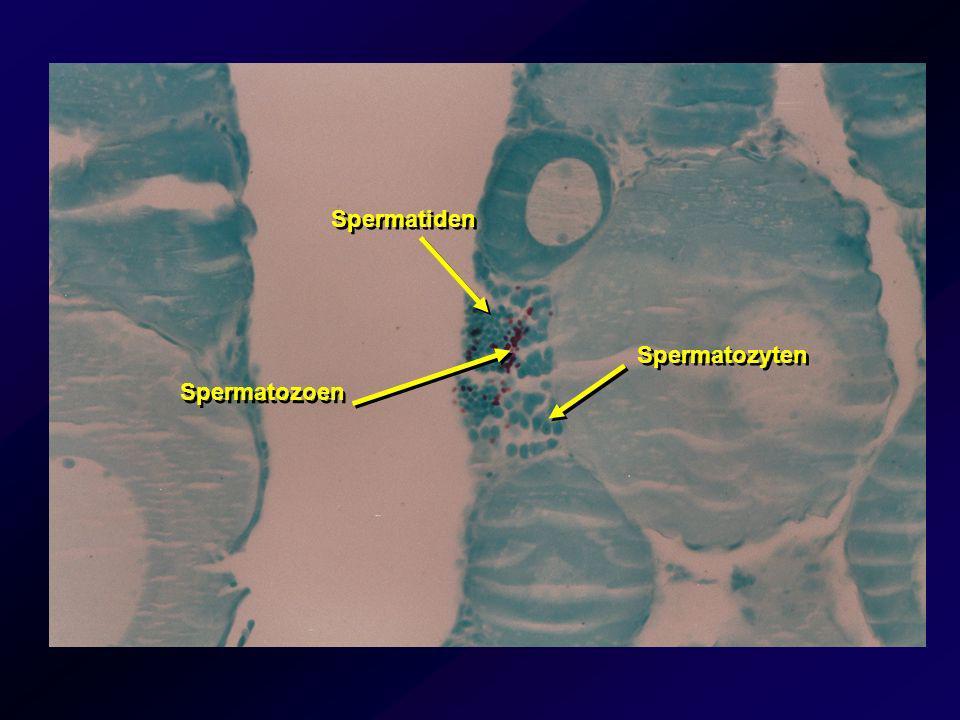 Spermatiden Spermatozyten Spermatozoen