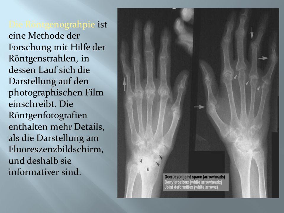Die Röntgenograhpie ist eine Methode der Forschung mit Hilfe der Röntgenstrahlen, in dessen Lauf sich die Darstellung auf den photographischen Film einschreibt.