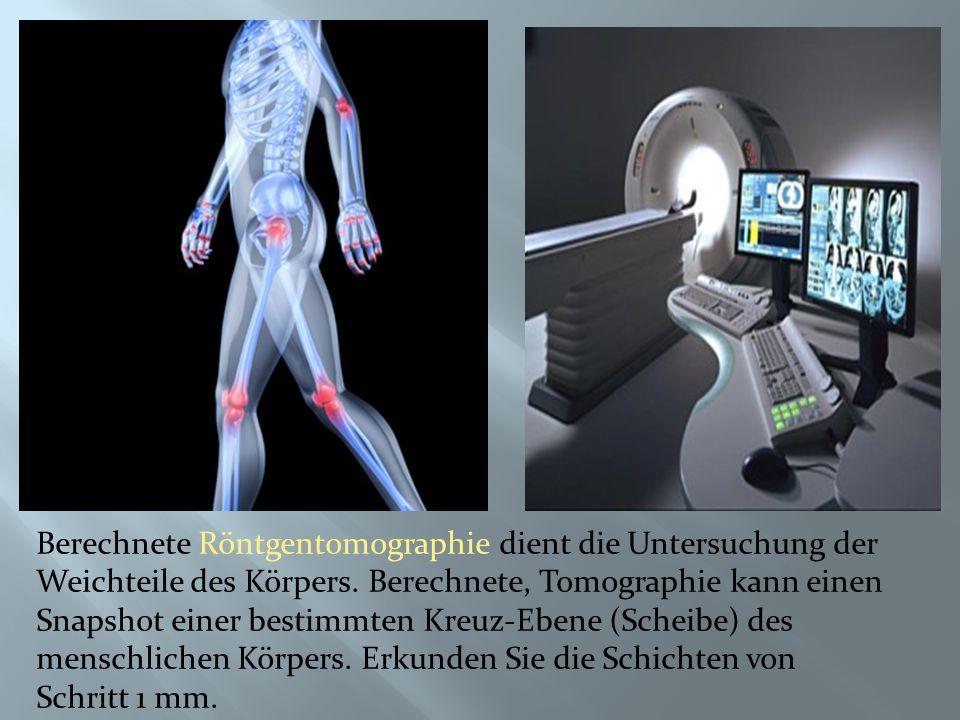 Berechnete Röntgentomographie dient die Untersuchung der Weichteile des Körpers.