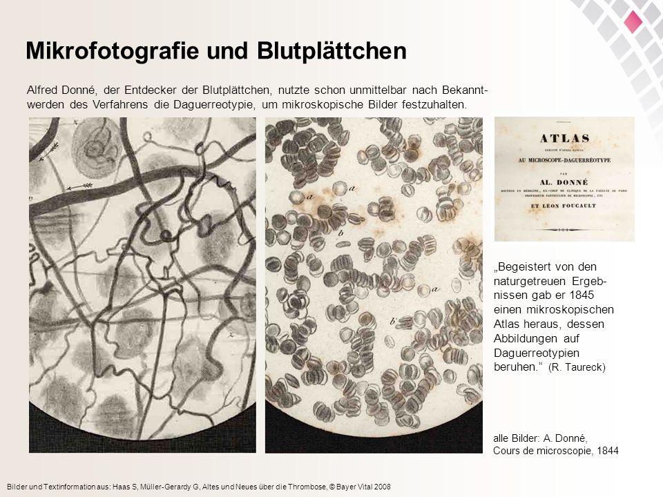 Mikrofotografie und Blutplättchen