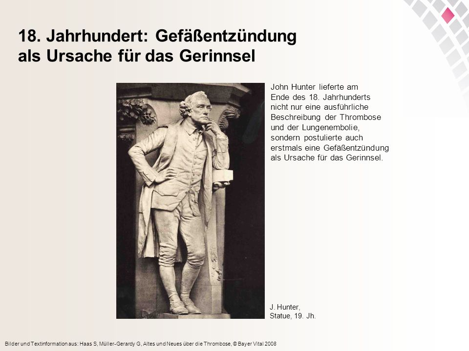 18. Jahrhundert: Gefäßentzündung als Ursache für das Gerinnsel