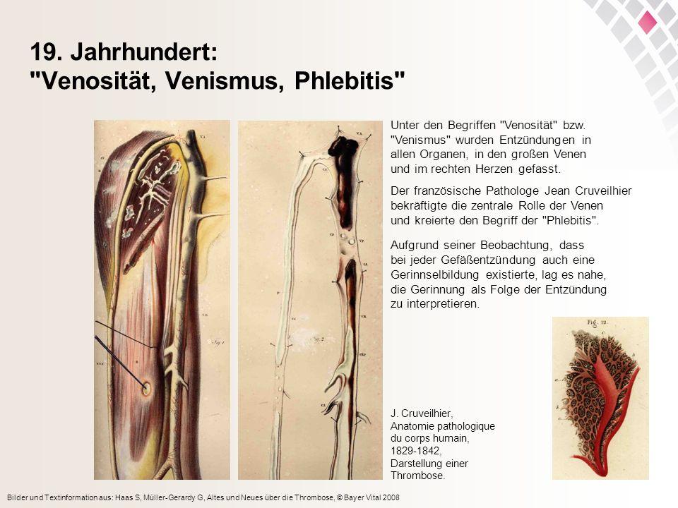 19. Jahrhundert: Venosität, Venismus, Phlebitis