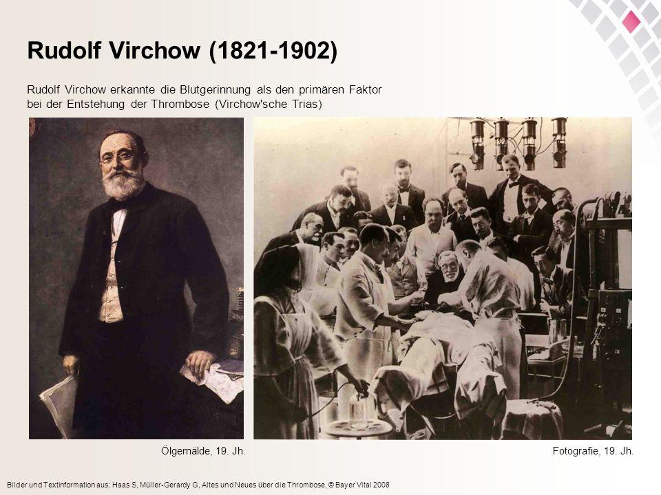 Rudolf Virchow (1821-1902) Rudolf Virchow erkannte die Blutgerinnung als den primären Faktor. bei der Entstehung der Thrombose (Virchow sche Trias)