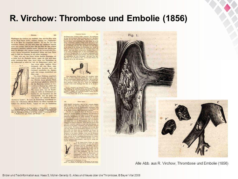 R. Virchow: Thrombose und Embolie (1856)