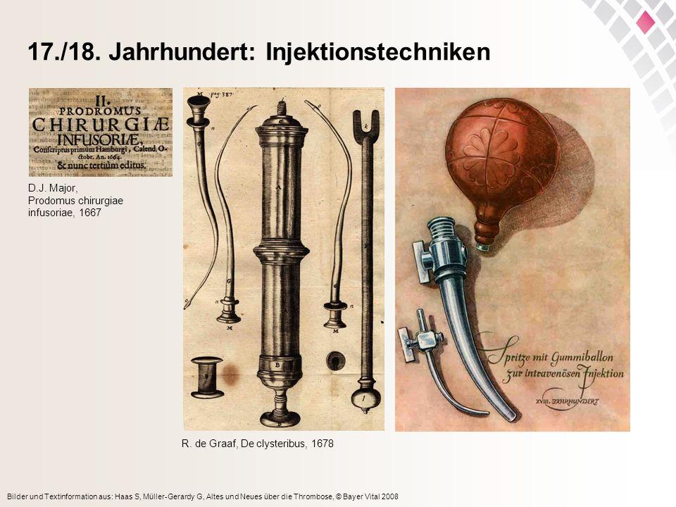 17./18. Jahrhundert: Injektionstechniken