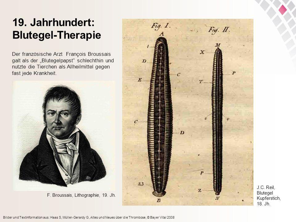 19. Jahrhundert: Blutegel-Therapie