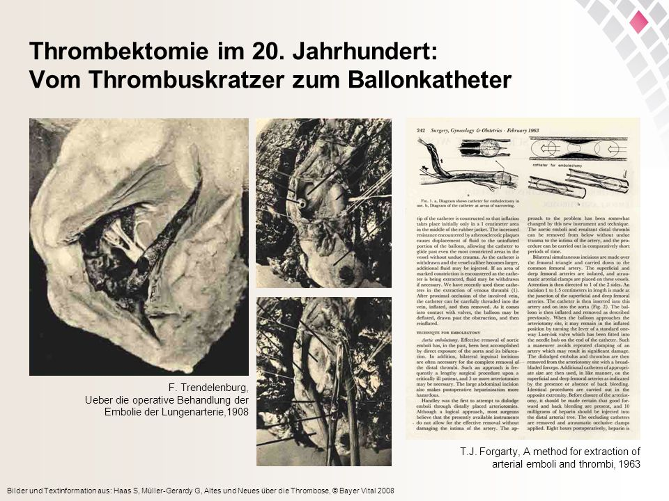 Thrombektomie im 20. Jahrhundert: Vom Thrombuskratzer zum Ballonkatheter