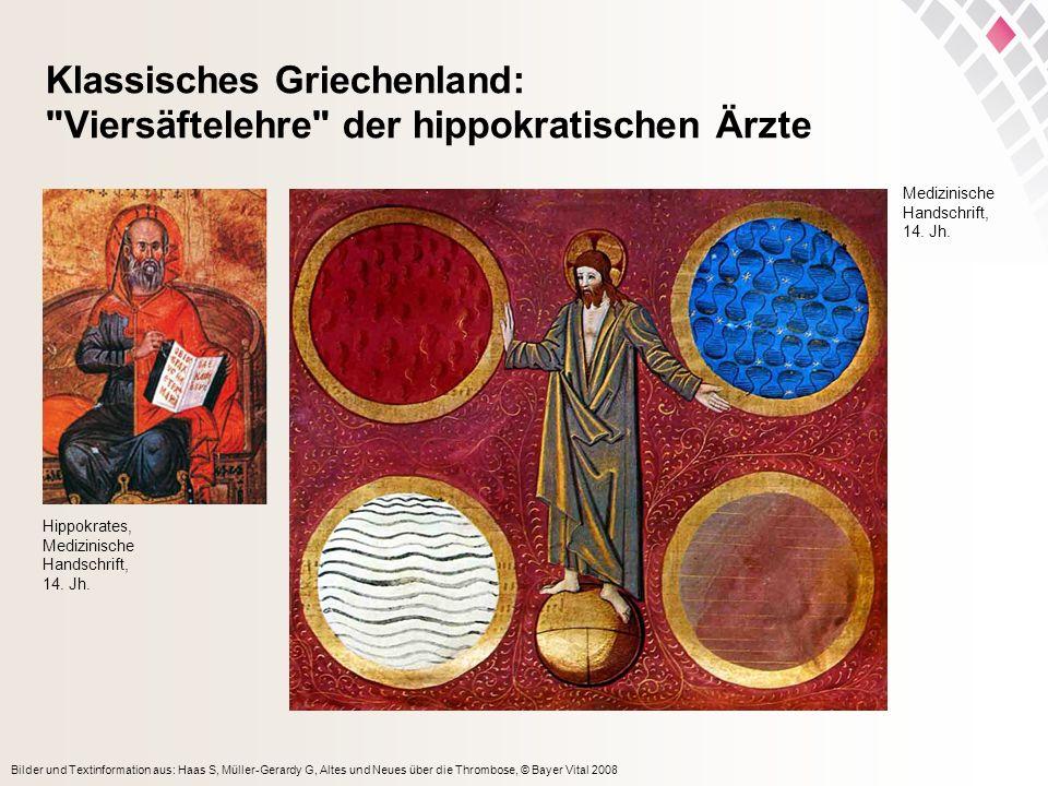 Klassisches Griechenland: Viersäftelehre der hippokratischen Ärzte