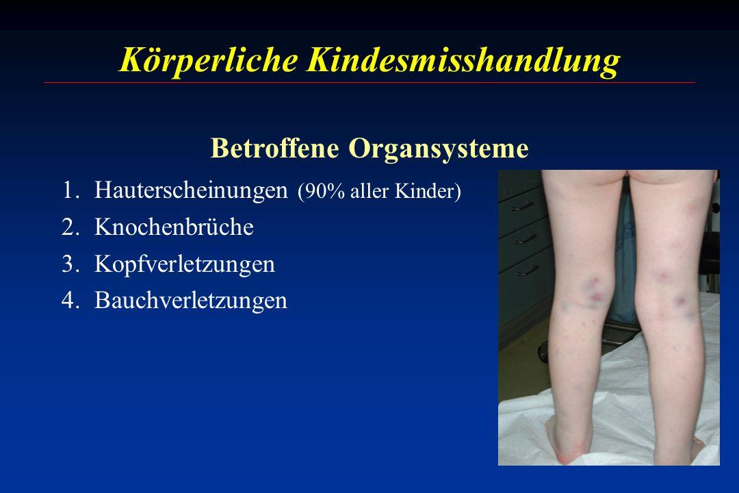 Körperliche Kindesmisshandlung Betroffene Organsysteme