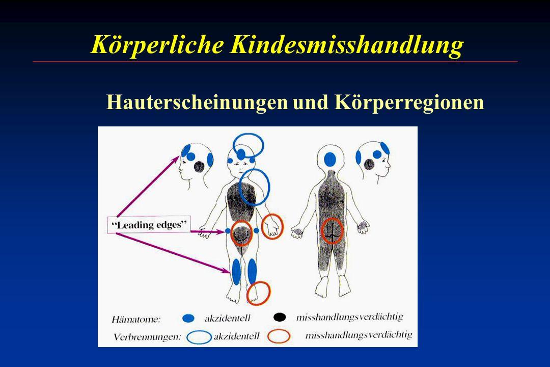 Körperliche Kindesmisshandlung Hauterscheinungen und Körperregionen