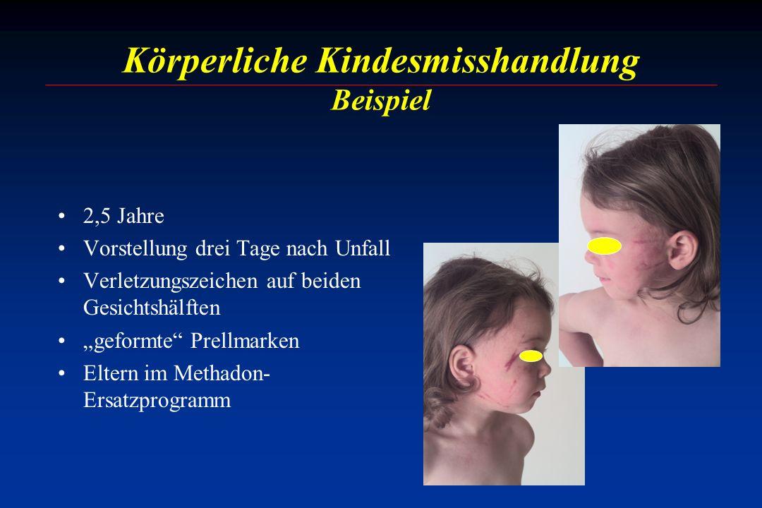 Körperliche Kindesmisshandlung Beispiel