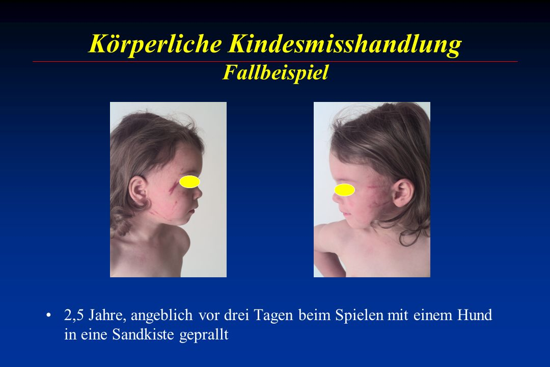 Körperliche Kindesmisshandlung Fallbeispiel