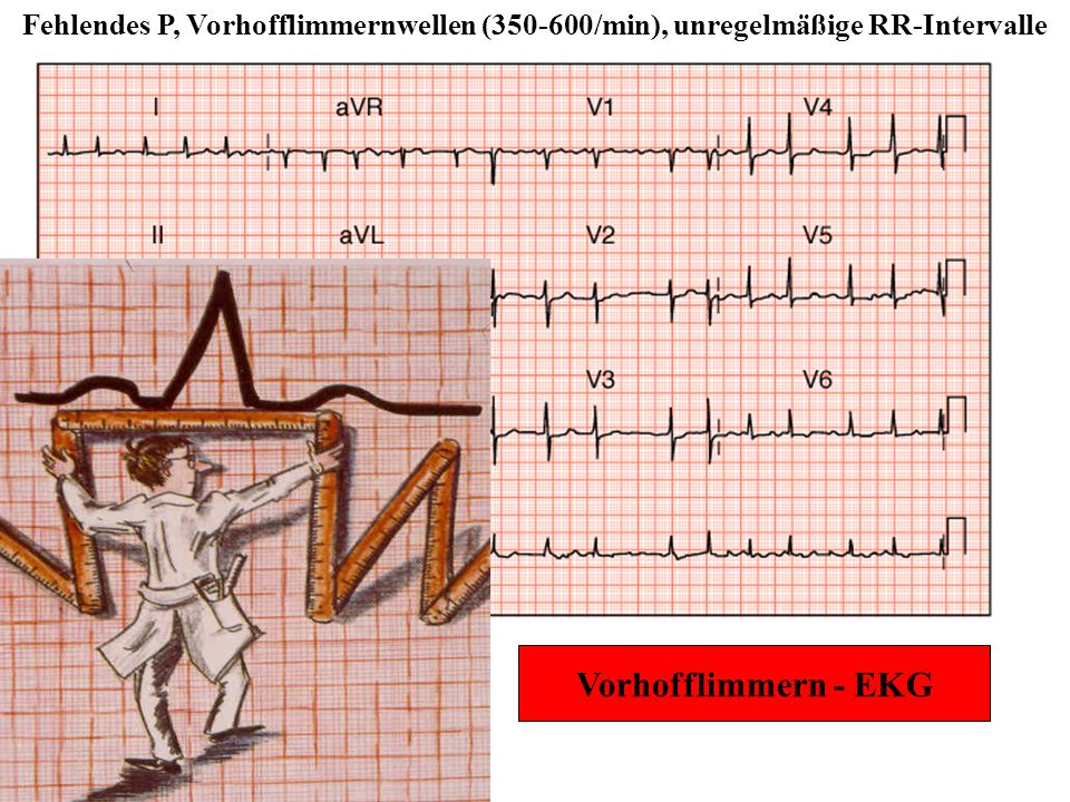 Fehlendes P, Vorhofflimmernwellen (350-600/min), unregelmäßige RR-Intervalle