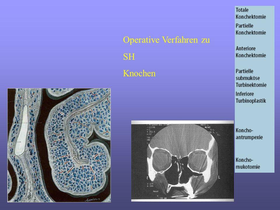 Operative Verfahren zu