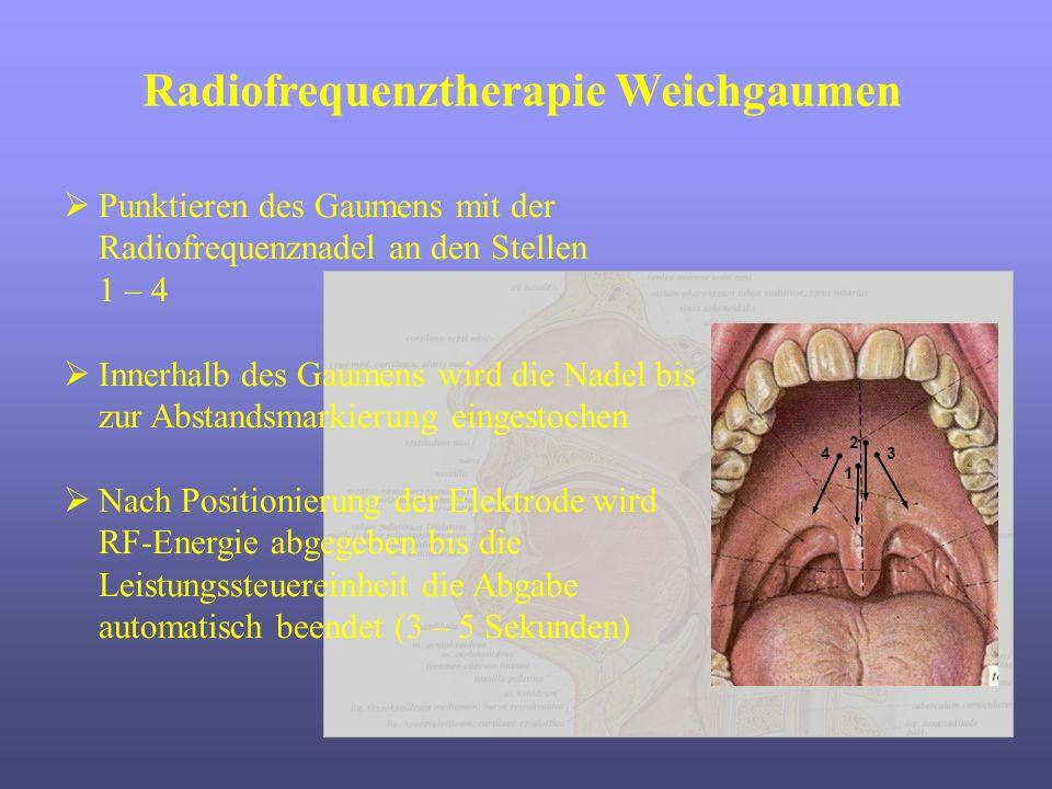 Radiofrequenztherapie Weichgaumen