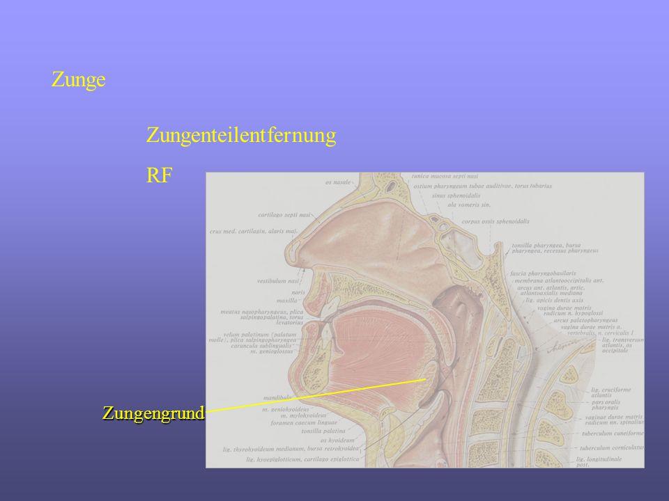 Zungenteilentfernung RF