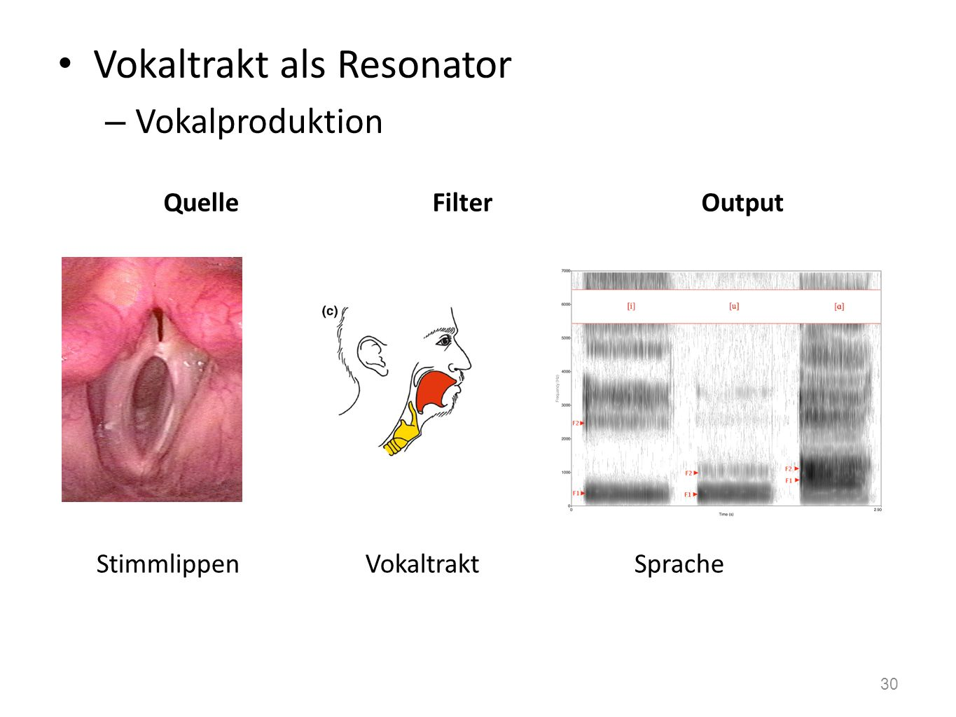 Vokaltrakt als Resonator