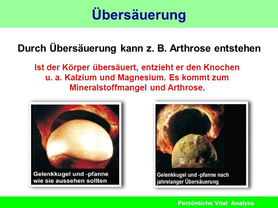 Übersäuerung Durch Übersäuerung kann z. B. Arthrose entstehen