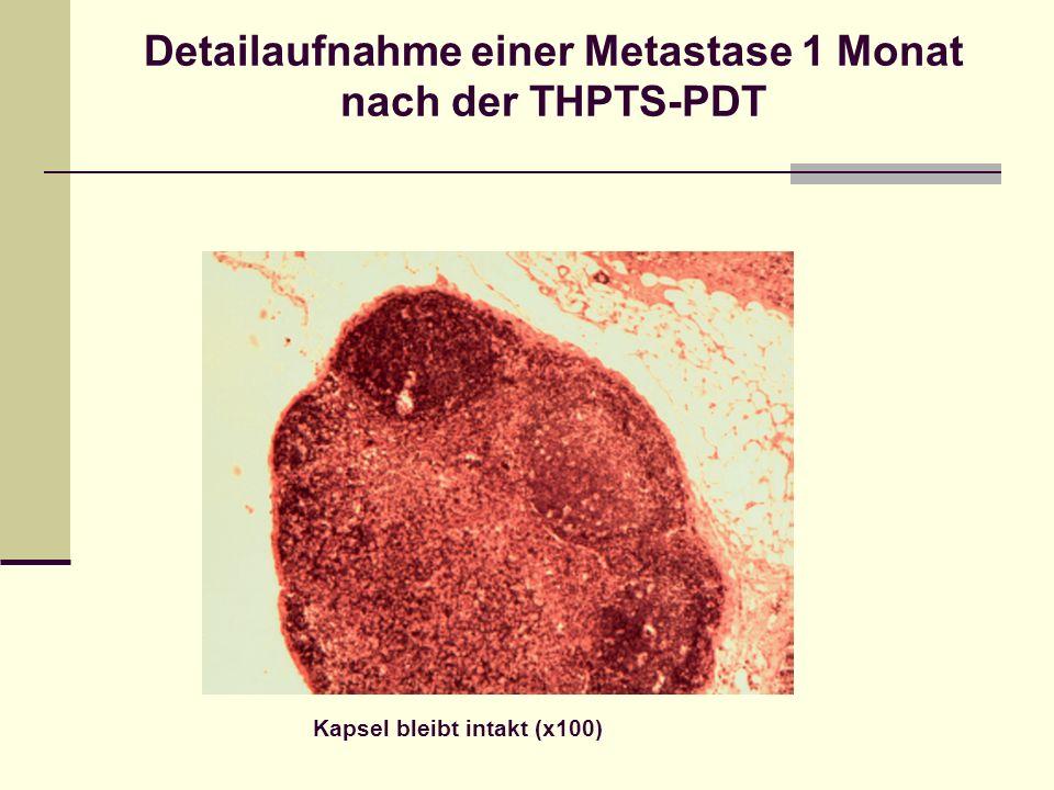 Detailaufnahme einer Metastase 1 Monat nach der THPTS-PDT