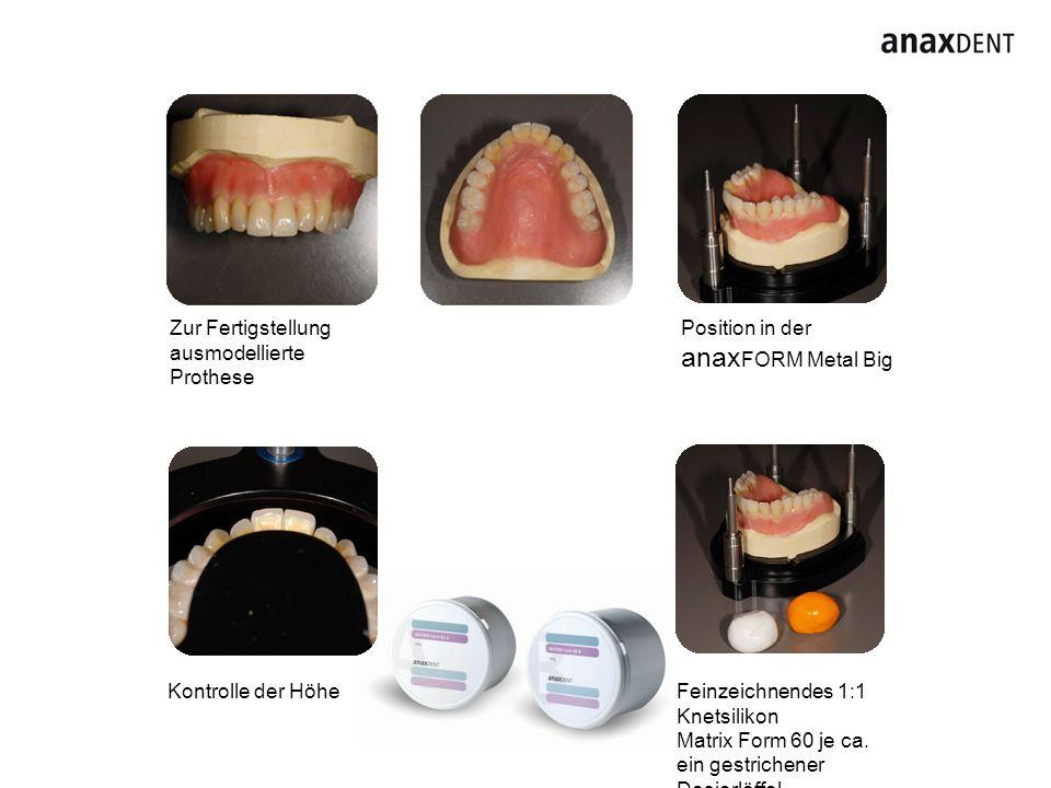 anaxFORM Metal Big Zur Fertigstellung ausmodellierte Prothese