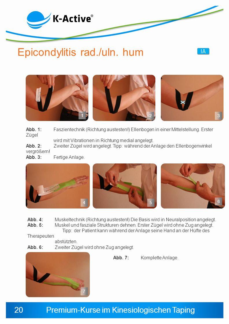 Epicondylitis rad./uln. hum