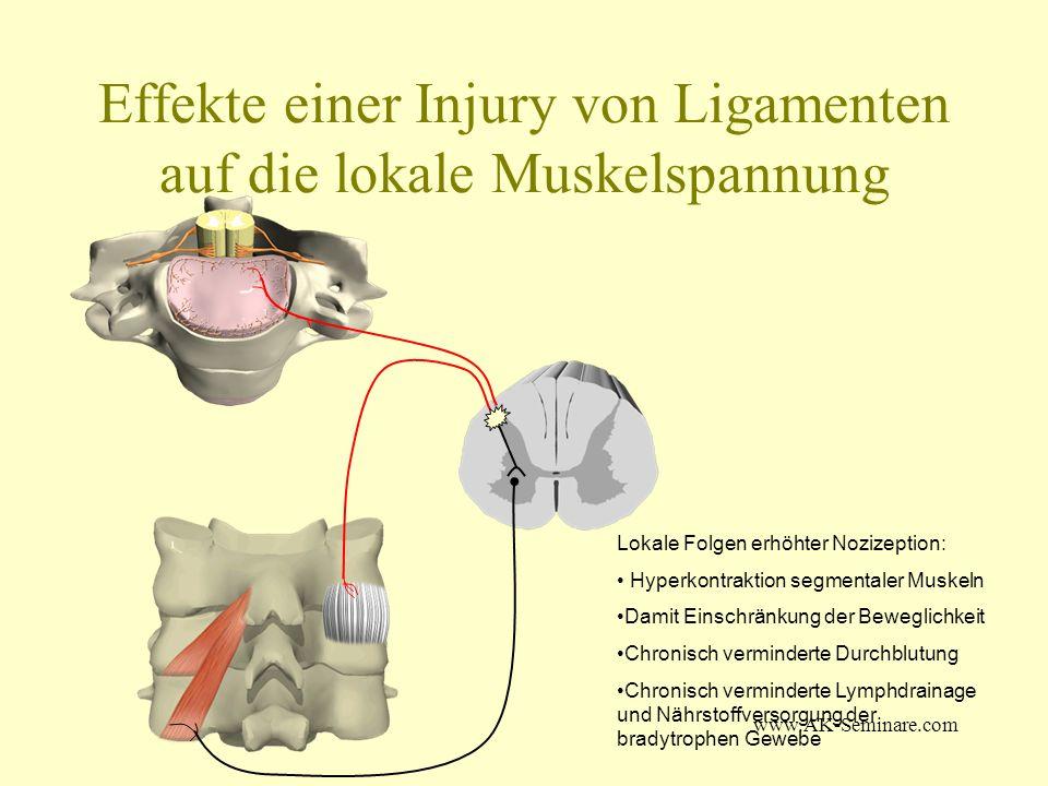 Effekte einer Injury von Ligamenten auf die lokale Muskelspannung