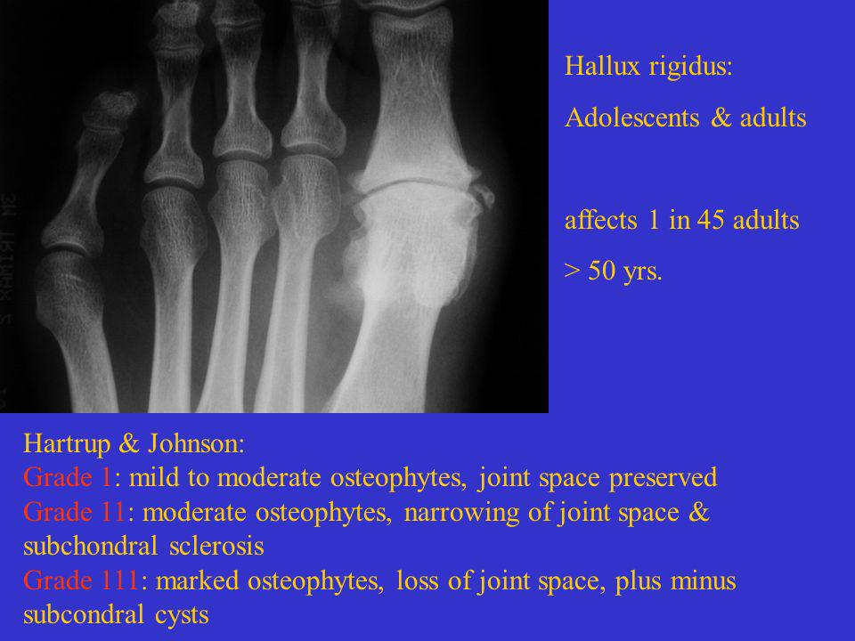 Hallux rigidus: Adolescents & adults. affects 1 in 45 adults. > 50 yrs. Hartrup & Johnson: