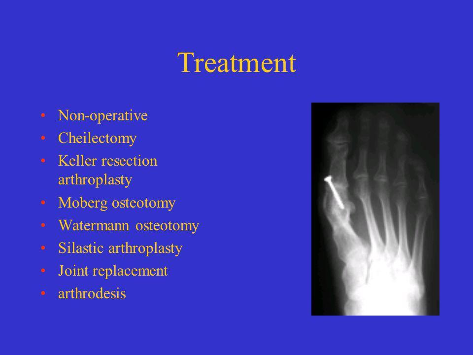 Treatment Non-operative Cheilectomy Keller resection arthroplasty