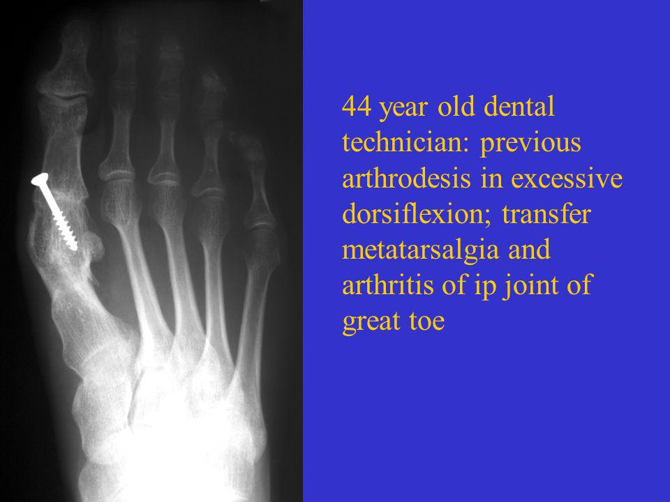 44 year old dental technician: previous arthrodesis in excessive dorsiflexion; transfer metatarsalgia and arthritis of ip joint of great toe