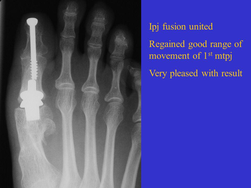 Ipj fusion united Regained good range of movement of 1st mtpj Very pleased with result