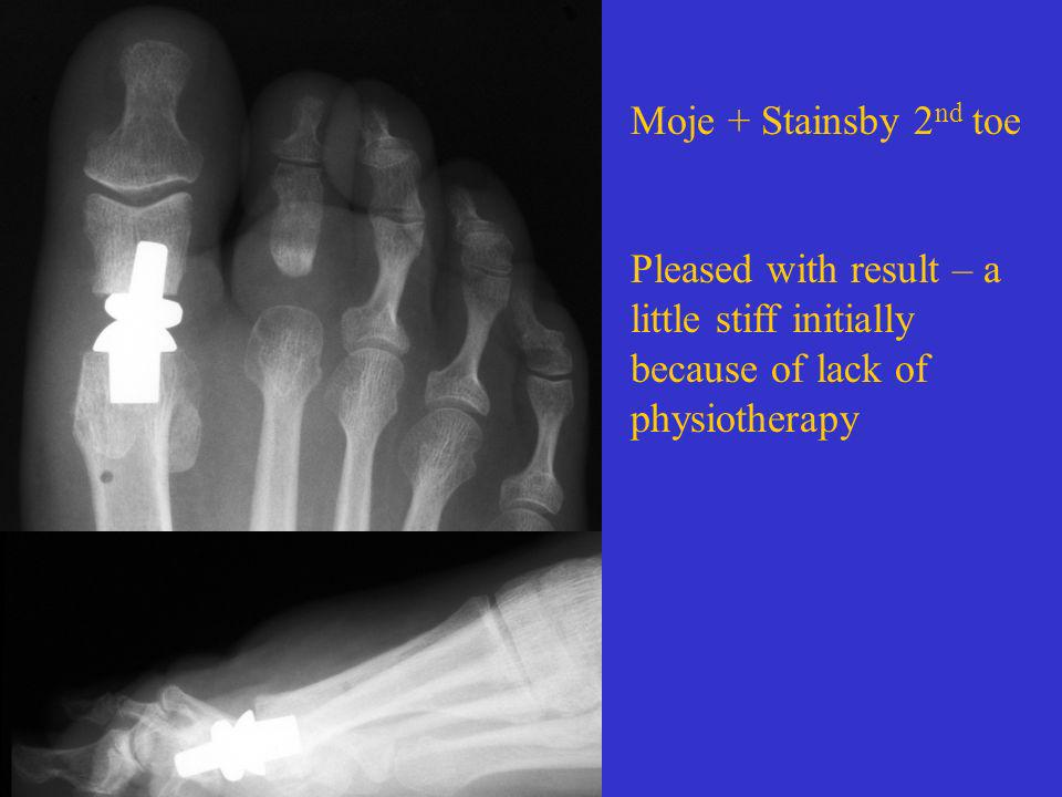 Moje + Stainsby 2nd toe Pleased with result – a little stiff initially because of lack of physiotherapy.