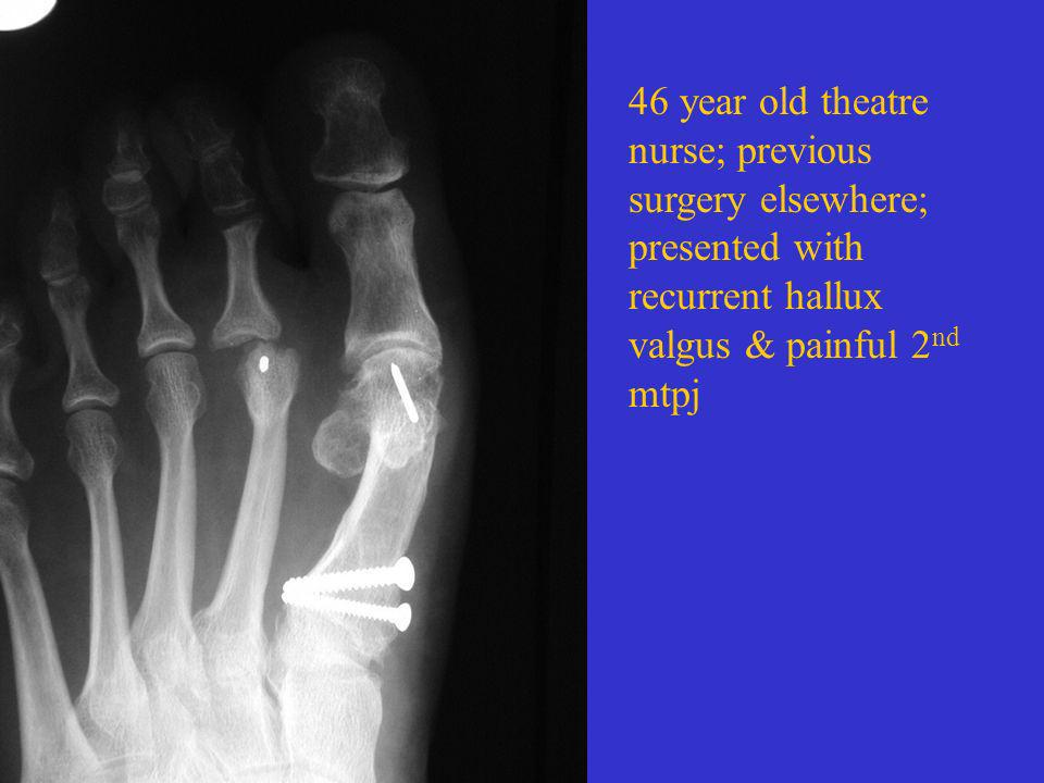 46 year old theatre nurse; previous surgery elsewhere; presented with recurrent hallux valgus & painful 2nd mtpj