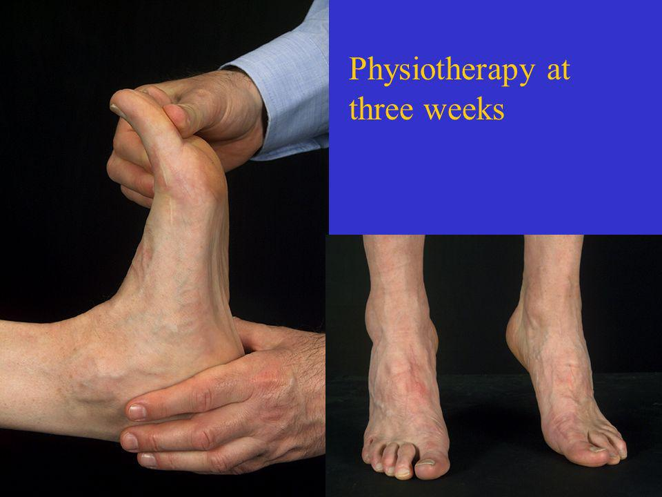 Physiotherapy at three weeks