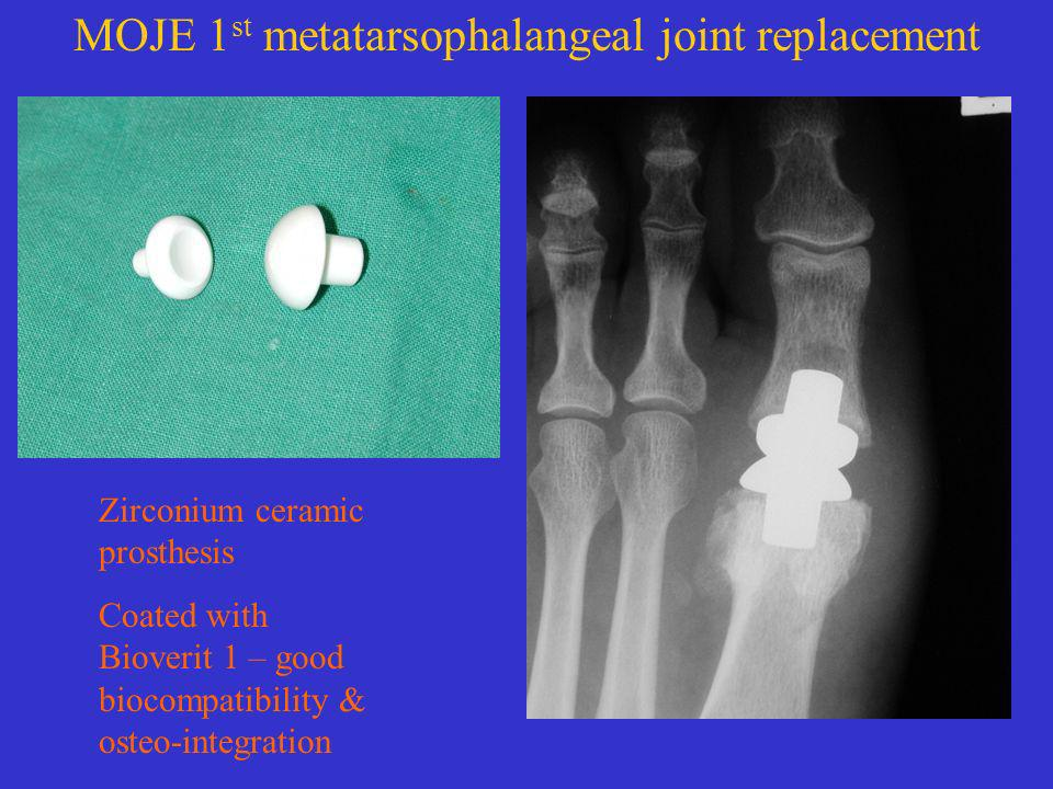 MOJE 1st metatarsophalangeal joint replacement