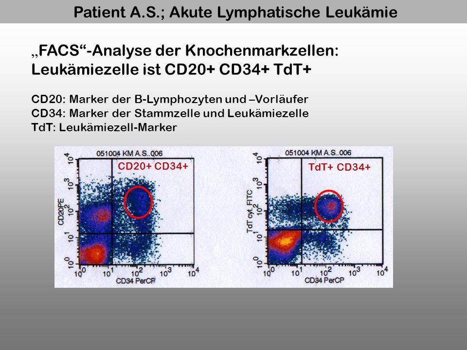 Patient A.S.; Akute Lymphatische Leukämie