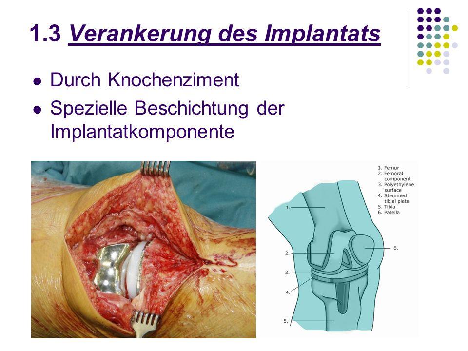 1.3 Verankerung des Implantats