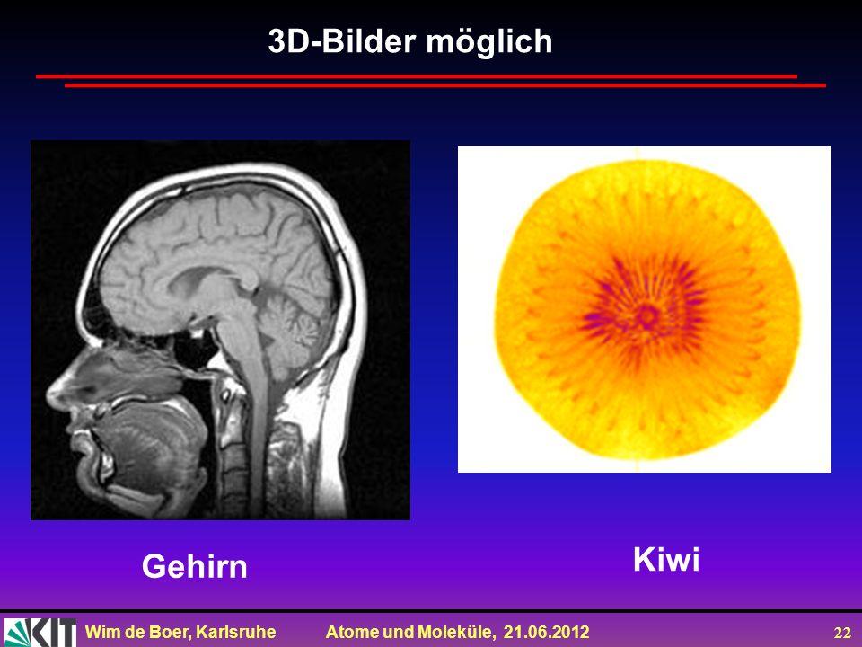 3D-Bilder möglich Kiwi Gehirn