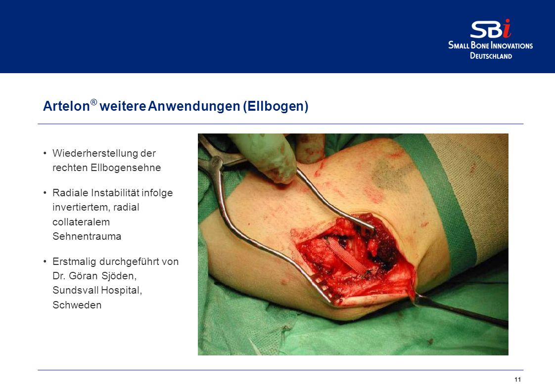 Artelon® Reparatur Achillessehnenabriss